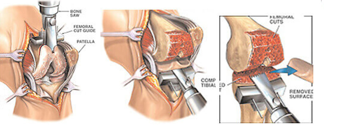 how to prepare for knee replacement surgery